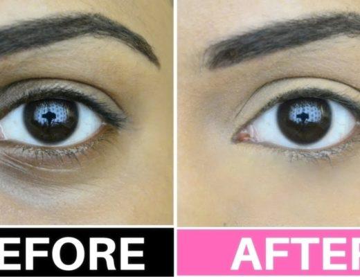 best treatments for dark circles