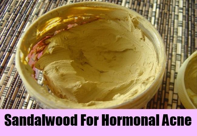 sandalwood powder for acne