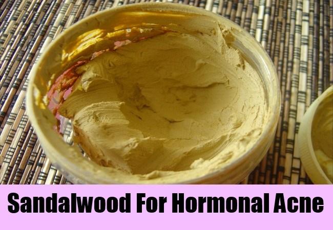 sandalwood powder for acne