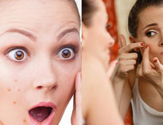 shahnaz beauty tips for pimples