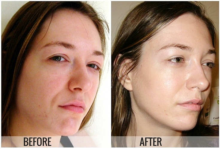 How To Remove Pigmentation From Face Permanently Trabeauli