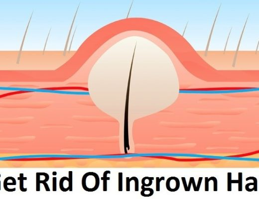 Remove Ingrown Hair Scars