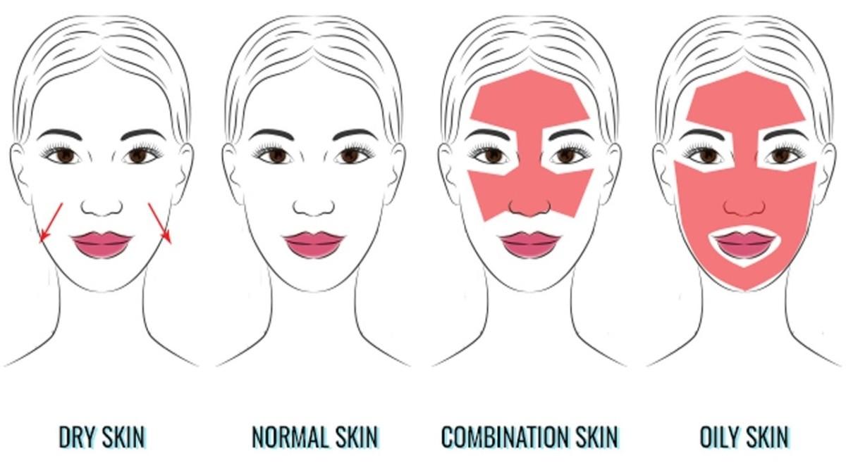 type of skin