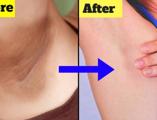 dark underarms home remedies