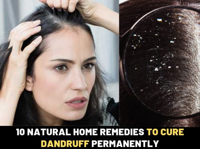 Of rid dandruff natural get to remedies 23 Homemade